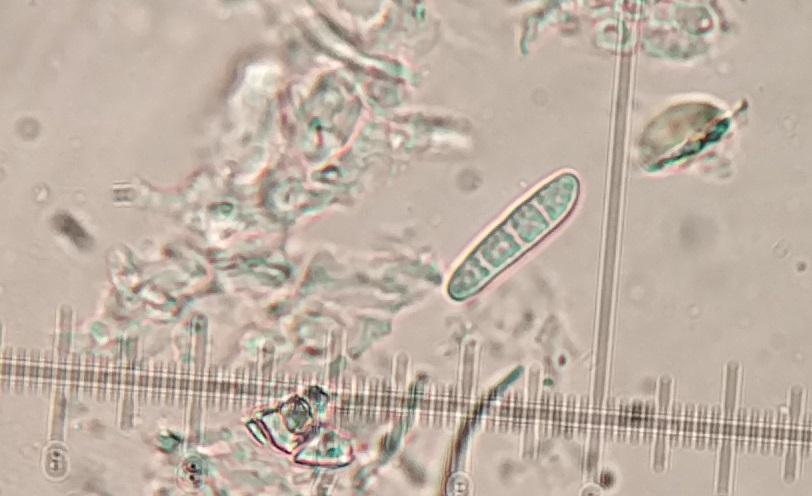 Micarea alabastrites Spores 3-septate 20x5μm K