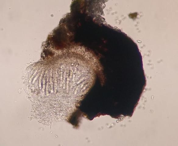 Anisomeridium biforme perithecia