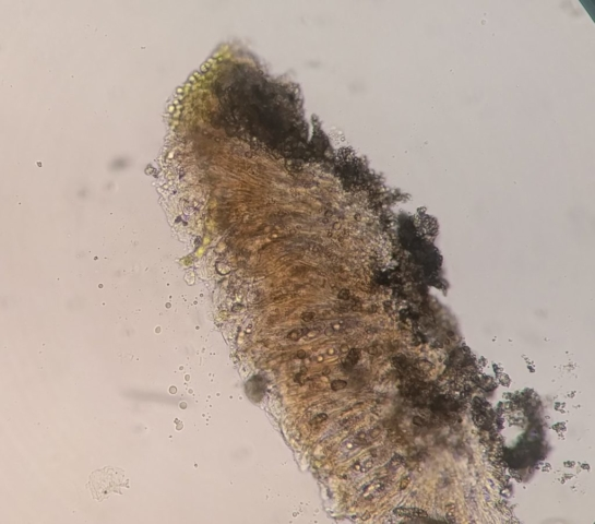 Trapelia coarctata section