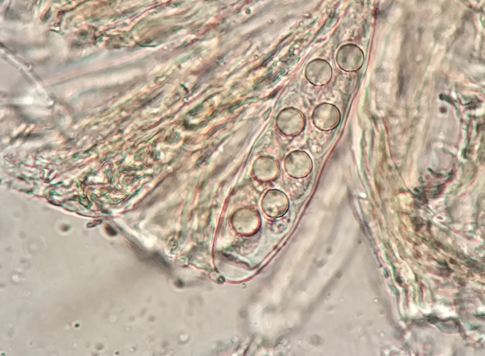 Trapelia coarctata spores 16x9μm Don't be fooled by oil droplets