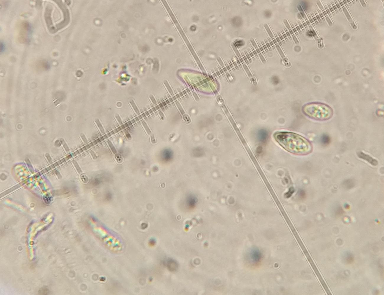 IMG_20210216_142631 Bryobilimbia sanguineoatra 1000x oil