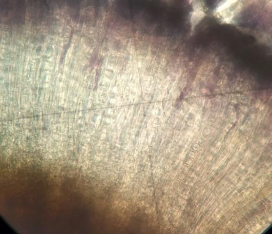 Schaereria cinereorufa asci and spores