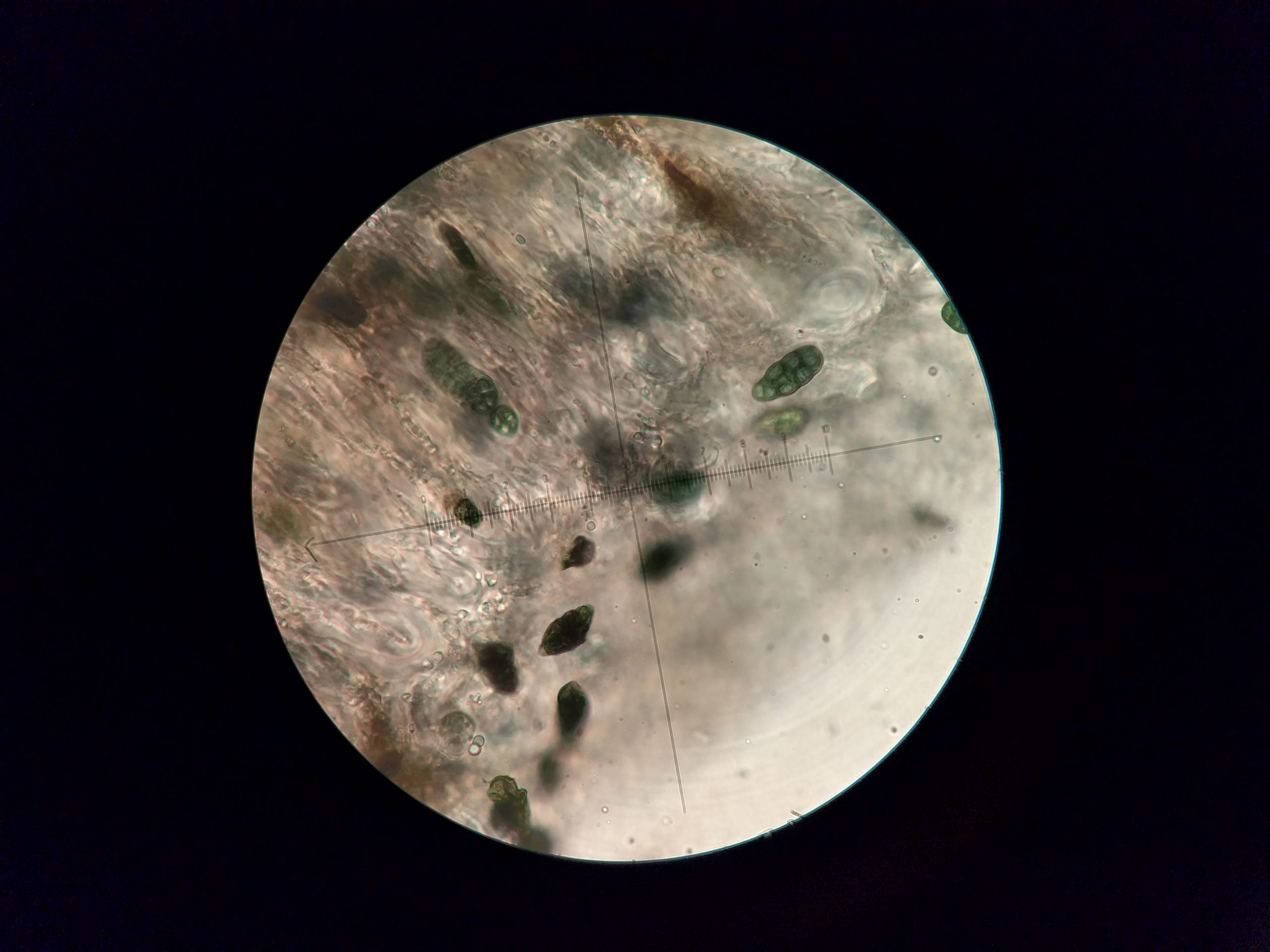 Rhizocarpon lecanorinum muriform spores in K