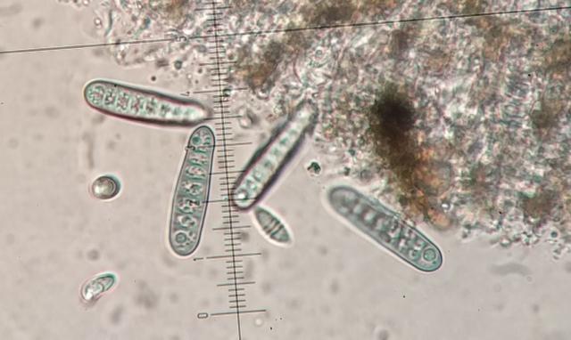 Phaeographis smithii spores