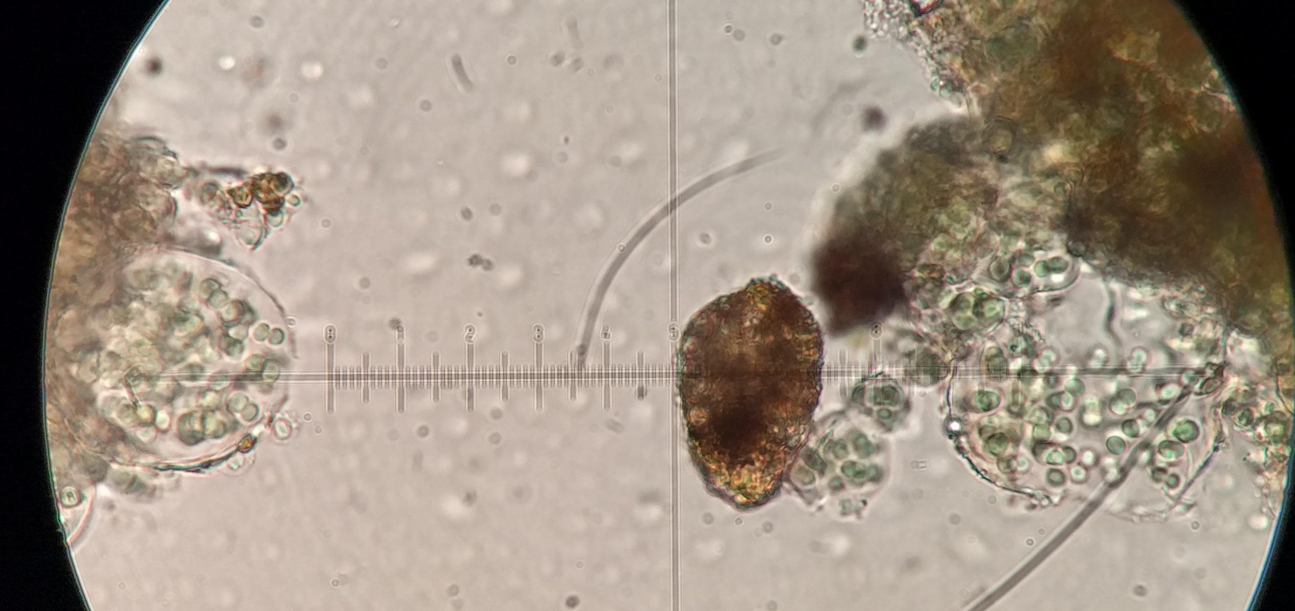 Agonimia globulifera spores